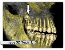 3D neue Technik