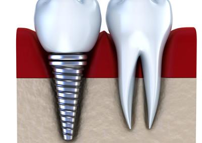 Was ist ein Implantat?