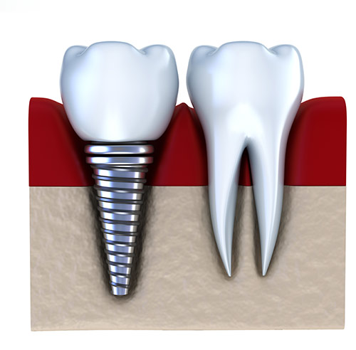 Was ist ein Implantat